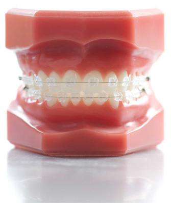 Simply Smile Braces in St Albans